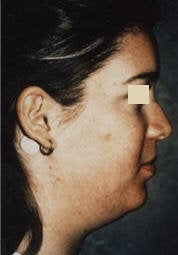 Chin Implant/Necklift/MiniLipo before 101596