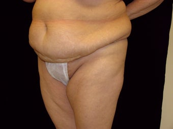Abdominoplasty before 258236