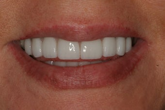 Porcelain Veneers after 213065