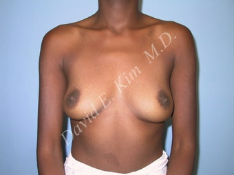 Breast Augmentation before 315110