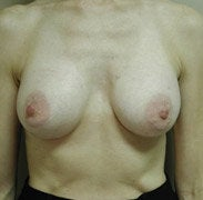 Breast Augmentation after 139572