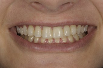 Resin bonding smile makeover on a teenager. before 326342