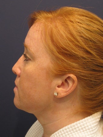 Neck liposuction after 407315