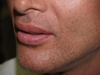 Lip augmentation and lift after 193392
