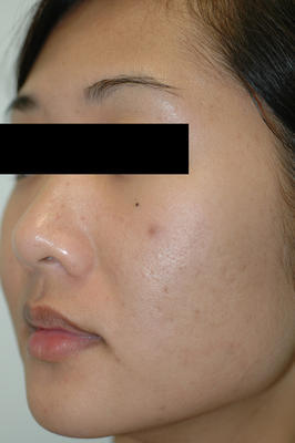 Laser Acne Scar Removal after 82972