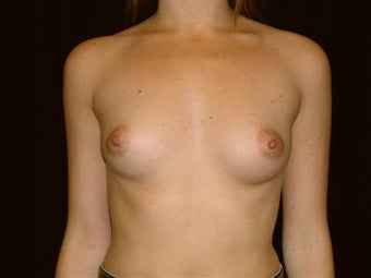 Breast augmentation before 293932