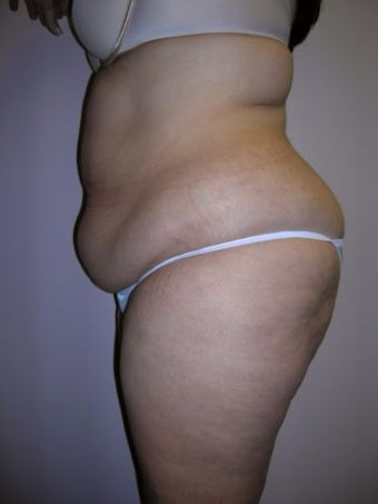 Liposuction before 258663