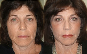 Small Image Lift, Full Face Laser Resurfacing before 351058