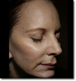 Sculptra  before 650576