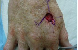 Skin Cancer Surgery on Hand before 561013