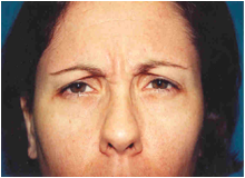 Chemical Brow Lift before 568456