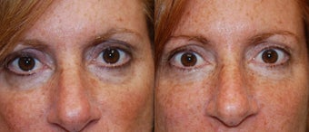 "Silikon-1000 to treat lower eyelid ""bags"" before 109826"