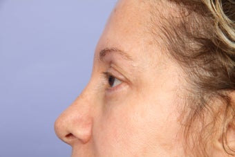 Eyelid Surgery  after 306458