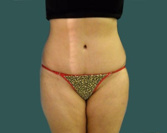 Tummy tuck after 561249