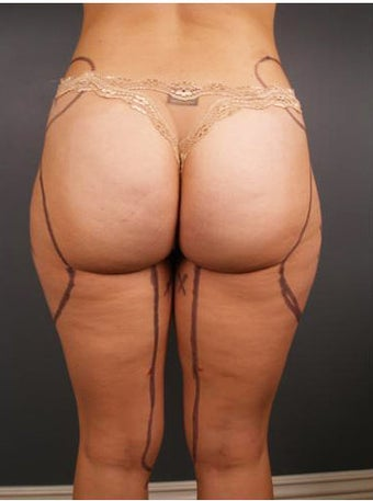 Tumescent Liposuction before 552078