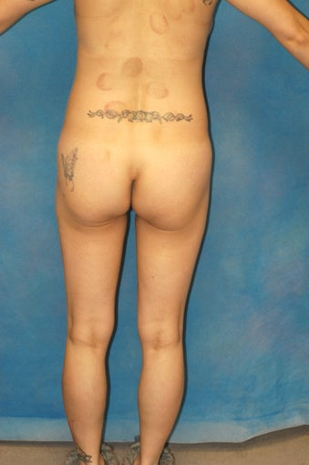 Women's Buttocks Augmentation   518133
