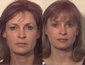 Composite facelift before 102532