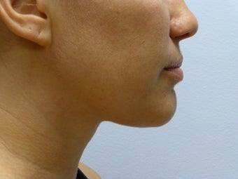 Liposuction to chin/neck area after 590814