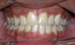Braces and Extraction after 349089