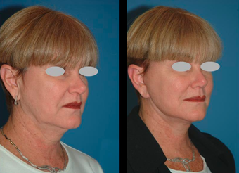Neck lift and Mini-facelift before 306839
