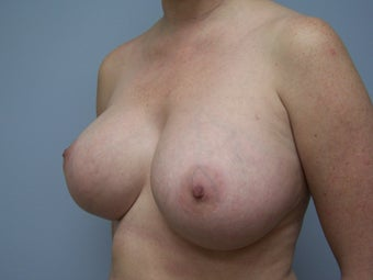 Breast Implant Removal 589951