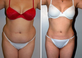 Liposuction before 330688