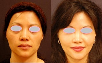 Fat Transfer for Cheek Augmentation before 555878