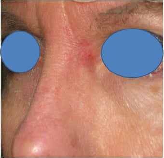 Repair of Mohs surgery defect on the left nose after 83242