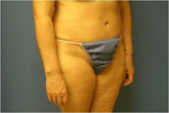 Abdominoplasty, Tummy Tuck, Liposuction 401748