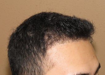 FUE Nograft hair transplantation after 582044