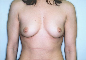 Breast Augmentation with High Profile Saline Implants before 261531