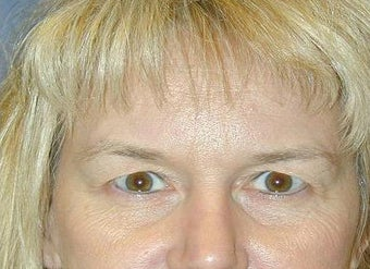 Blepharoplasty before 142232