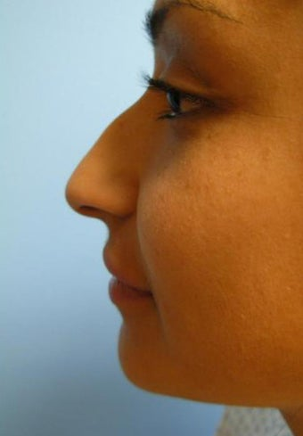 Rhinoplasty before 355874