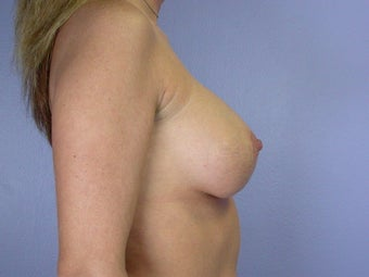 Breast Lift / Breast Augmentation  after 290965