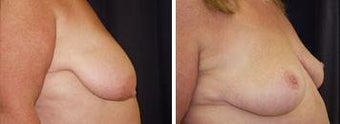 59 year old / breast reduction before 343926