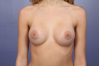 Breast Augmentation after 467314