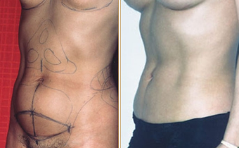 Abdominoplasty before 270031