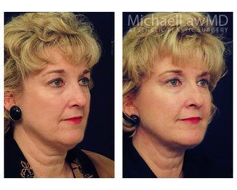 Facial Rejuvenation - Neck Lift after 395191