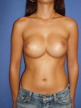Breast Reconstruction Surgery before 136223