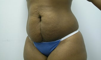Abdominoplasty before 601416