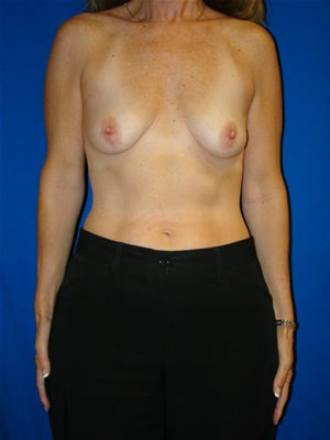 Breast Augmentation Surgery before 112639
