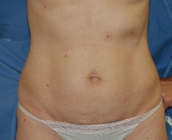 Mini-abdominoplasty before 493674