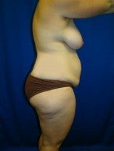 Breast Reduction, Tummy Tuck (Abdominoplasty), Mommy Makeover 404137