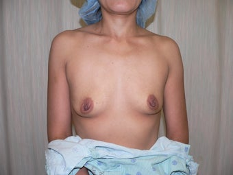 Breast augmentation with donut mastopexy before 387885
