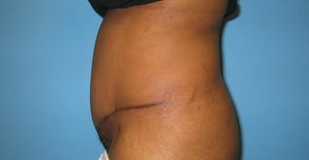 tummy tuck after 284062