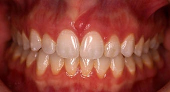 Invisalign after 208624