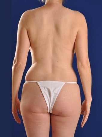 Vaser Hi Def Liposuction of abdomen, thighs, flanks and back with fat injections to buttocks before 422680