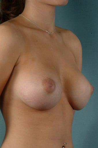 Breast Augmentation  after 240353