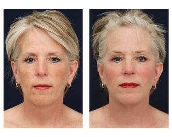 Neck Lift, Fat Grafting after 347553