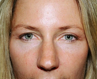 Upper eyelid blepharoplasty after 378934